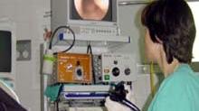 Colonoscopia, necesară dacă simptomele sugerează un risc de a avea cancer de colon