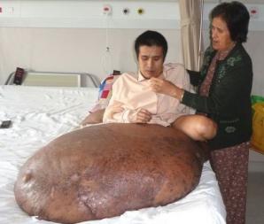 Vietnamezul are o tumoare de 90 de kilograme la piciorul drept