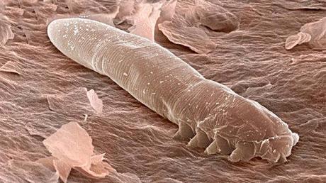 Nu le VEZI fără microscop, dar trăiesc pe pielea TUTUROR oamenilor - VIDEO înspăimântător