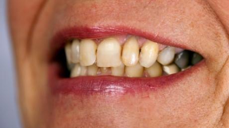 Piatra care se depune treptat pe dintii tai ii poate afecta serios. Daca ti-e teama ca o procedura de curatare a tartrului in cabinetul unui stomatolog este dureroasa si costisitoare, atunci ai putea sa faci asta chiar acasa folosind sarea de mare. Citește mai departe...