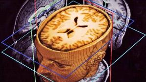Jocul care ajută pacienţii cu scleroză multiplă. Cum s-a îmbunătăţit starea lor