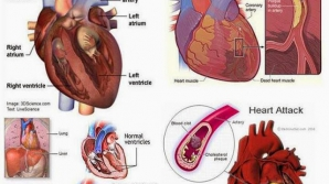 Semne care te ajută să anticipezi instalarea unui atac de cord. Chiar şi cu o lună înainte