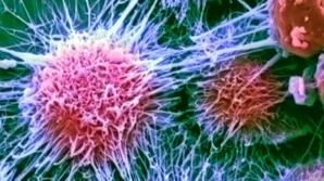 Simptomele unuia dintre cele mai periculoase tipuri de cancer. Multe femei nu le observă