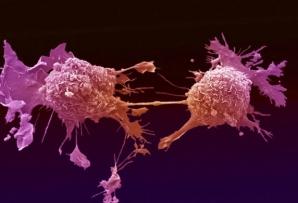 Au revoluţionat lumea întreagă! Cum arată fructele care ucid cancerul într-un minut