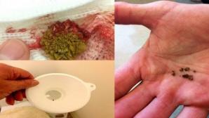 Remediul miraculos care îţi curăţă rinichii! Nu vei mai avea niciodată probleme de sănătate