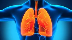 Acestea sunt primele semne ale cancerului pulmonar. Mergi urgent la medic dacă ai aceste simptome