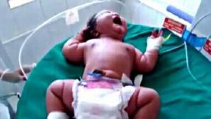 Record. Cât cântăreşte fetiţa cu cea mai mare greutate la naştere din lume