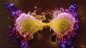 Cele mai mari mituri despre cancer