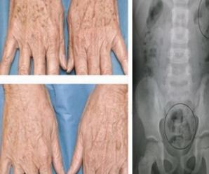 Scapă de petele de bătrâneţe şi de durerile musculare cu un singur produs natural
