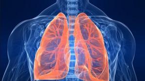10 alimente pe care orice fumător ar trebui să le consume pentru a-şi curăţa plămânii
