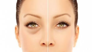 Cum dispar cercurile negre de sub ochi