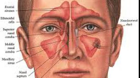 remediul-banal-pentru-sinusurile-inflamate-afla-cum-le-poi