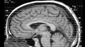 fMRI-ul nu a putut să-l salveze pe Brian Dugan de la pedeapsa capitală