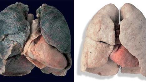 Plămân
