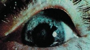 Noile lentile pot fi folosite de bolnavii suferind de cataractă, miopie, hipermetropie sau astigmatism