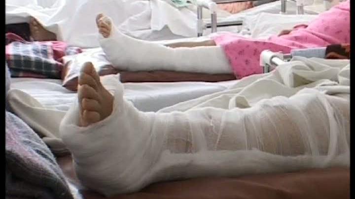 Pacienţii cu luxaţii sau entorse sunt externaţi după o zi de spitalizare