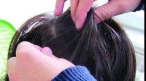 Focar de păduchi în şcoli: Cum prevenim transmiterea lor?