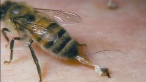 Leacuri contra înțepăturilor de insecte