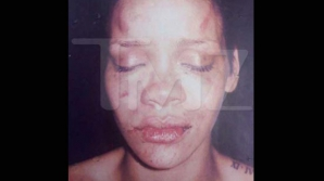 Rihanna, bătută de Chris Brown. Foto: TMZ