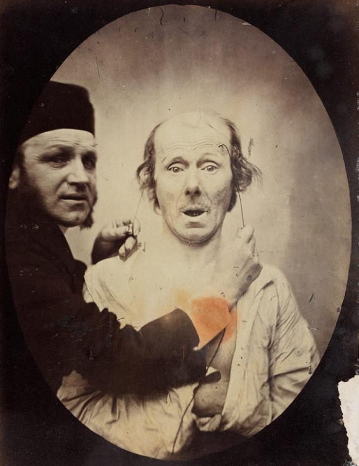 Fotografiile tulburătoare ale lui Duchenne de Boulogne