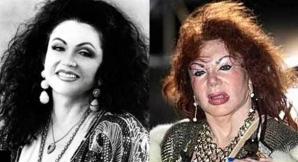 Jackie Stallone, înainte şi după intervenţiile chirurgicale estetice