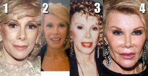 Joan Rivers, înainte şi după operaţiile estetice