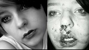 A fost mutilată de un grup de bătăuşi, iar după doi ani le-a mulţumit că au desfigurat-o