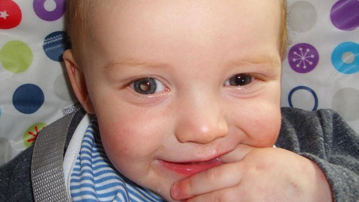 IMAGINI TULBURĂTOARE. Bebeluş diagnosticat cu o formă rară de CANCER la ochi
