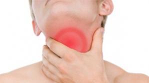 Cauzele reale ale cancerului esofagian sunt vârsta, obezitatea şi refluxul gastroesofagian