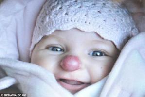 Connie s-a născut cu o pată roşie pe nas, care a tot crescut. Fetiţa a fost operată cu succes