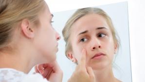 Ce trebuie să știi ca să scapi de acnee