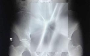 Radiografie şocantă