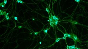Celulele sușă pot fi obținute prin scufundarea celulelor sanguine în acid