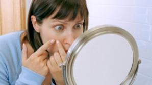 Tot ce trebuie să știi despre acneea la adulți