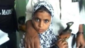 Saadiyah Saleh, o fetiţă în vârstă de 12 ani, din Yemen, de 12 ani, a stârnit panică în rândul localnicilor