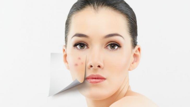 De ce apare acneea si cum o tratam