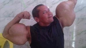 """""""Popeye din Brazilia"""" este în pericol de moarte din cauza """"mușchilor"""" săi"""