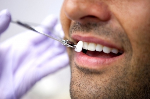SĂNĂTATE. Secretul din spatele zambetului de vedete – Fațetele dentare