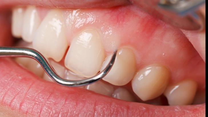 Boala parodontală. Ce este și cum se tratează