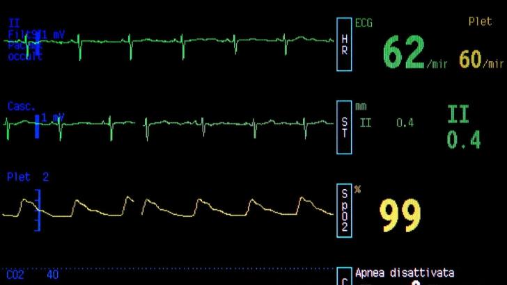 Şi-a deconectat soţia de la aparate, pe patul de spital. După trei zile a primit o veste ŞOCANTĂ