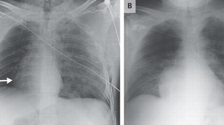 Adevărul despre radiografii. Ce se întâmplă, de fapt, când razele X intră în organismul nostru