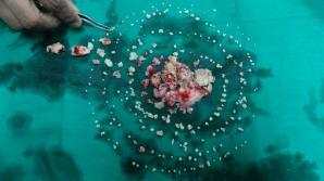 Medici din India au extras 232 de dinți din gura unui adolescent
