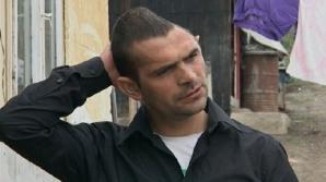 Viaţa schimbată pentru românul cu jumătate de craniu