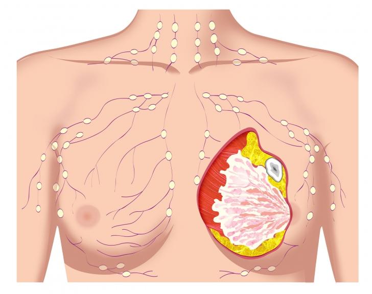 Cum eviţi riscurile cancerului de sân