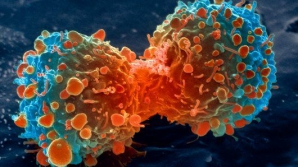 CANCERUL DE ESOFAG ar putea fi diagnosticat rapid cu ajutorul unui BURETE