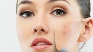 """Leacuri """"băbeşti"""" pentru acnee care dau rezultate"""