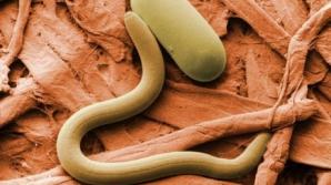 10 semne că ai putea avea un parazit în corp