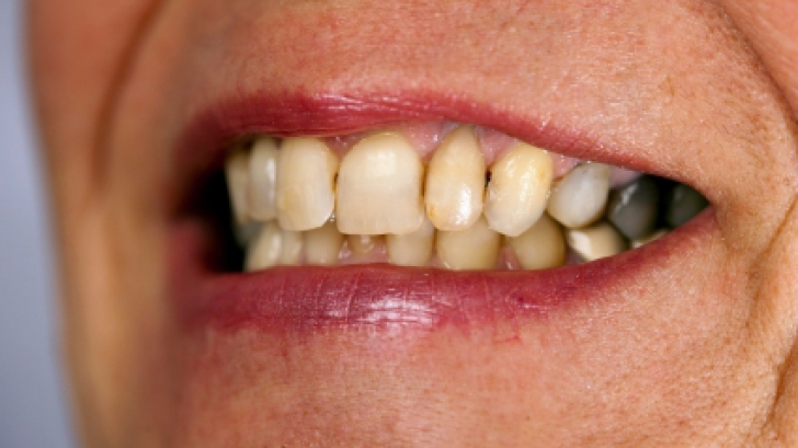 Cum sa cureti piatra de pe dinti chiar la tine acasa! E simplu si sanatos!