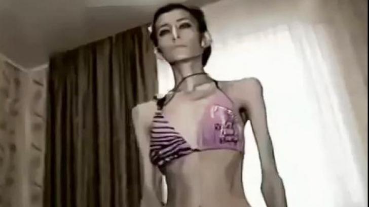 Cea mai slabă femeie din lume are doar 21 de kg
