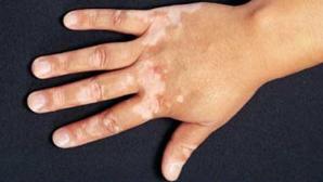Cum scapi de petele de pe piele